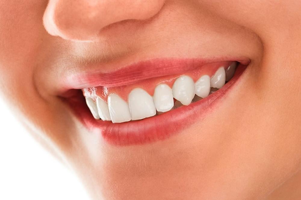 歯のコラム
