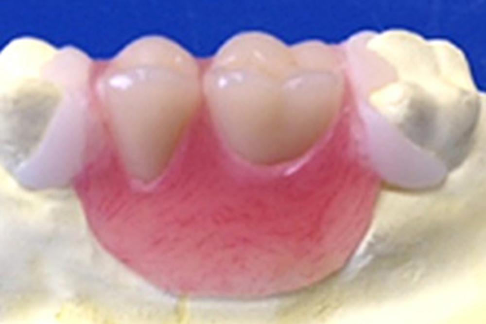 ブリッジ型義歯
